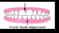 Front Teeth Alignment